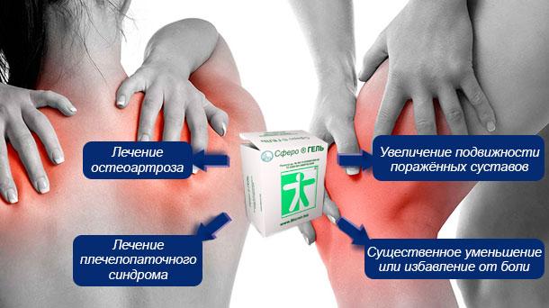 Сферогель для суставов цена остеопороз суставных концов костей